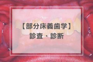 部分床義歯学:診査・診断