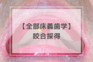 全部床義歯学:咬合採得