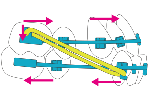 Ⅲ級ゴムの作用機序