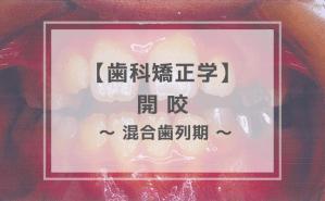 歯科矯正学:開咬