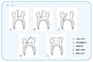 生活歯髄切断