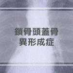 鎖骨頭蓋骨異形成症