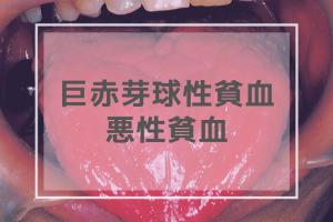 巨赤芽球性貧血・悪性貧血
