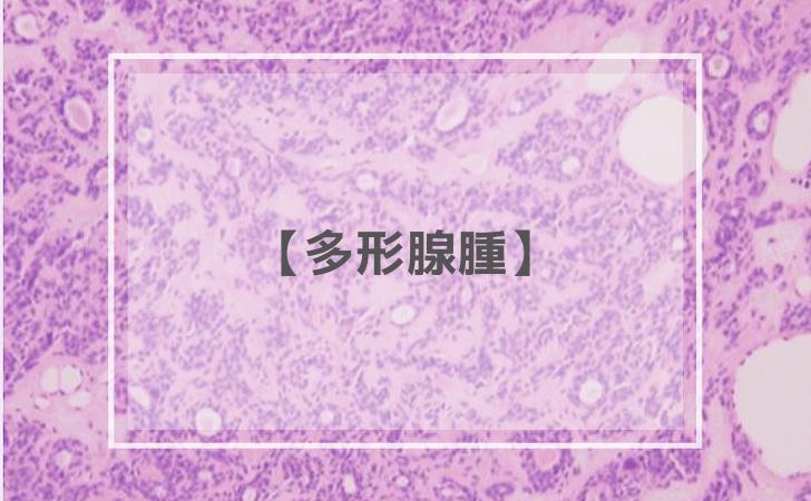 唾液腺疾患:多形腺腫(多形性腺腫)