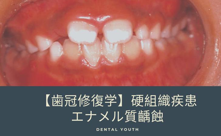 【歯冠修復学】硬組織疾患:エナメル質齲蝕