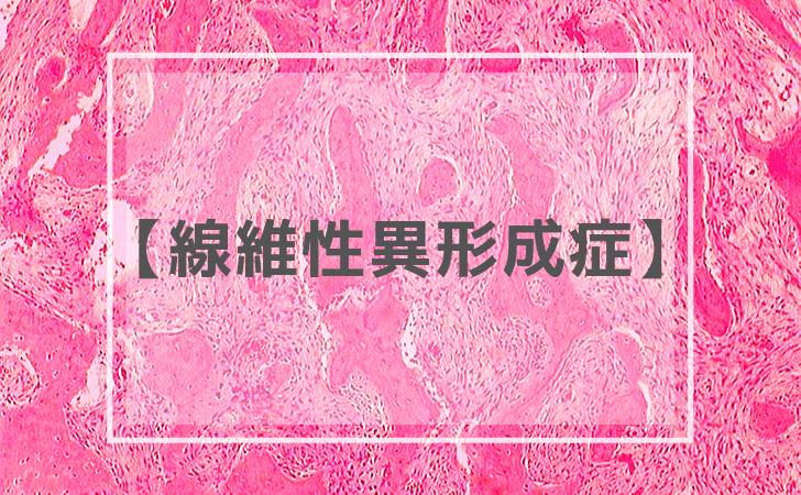 線維性異形成症