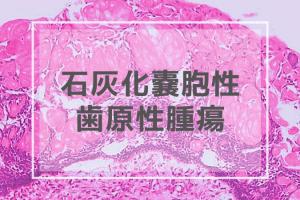 石灰化嚢胞性歯原性腫瘍