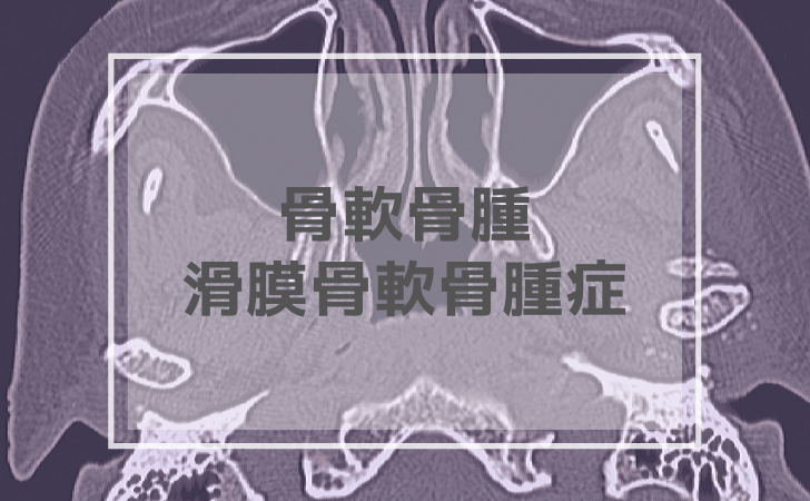 骨軟骨腫・滑膜骨軟骨腫症