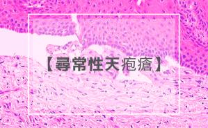 尋常性天疱瘡