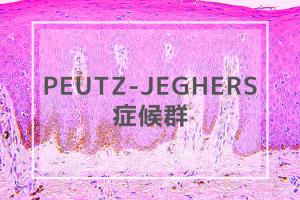 Peutz-Jeghers症候群