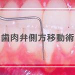 歯肉弁側方移動術
