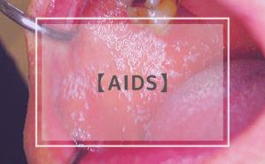 AIDS:後天性免疫不全症候群
