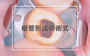 根管形成の術式