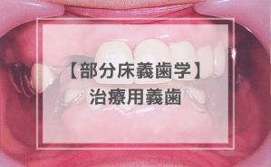 部分床義歯学:治療用義歯