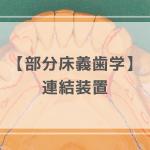 部分床義歯学:連結装置