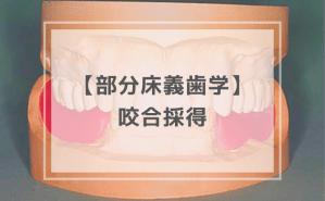 部分床義歯学:咬合採得