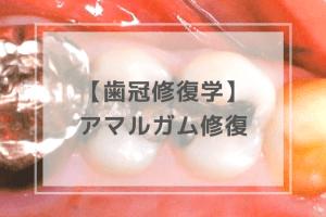 歯冠修復学:アマルガム修復
