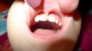 Короткая уздечка верхней губы у ребенка – чем опасна и что делать? Уздечка верхней губы: дефекты и способы лечения.
