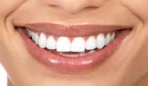 Что лучше металлокерамика или металлопластмасса для зубов
