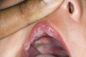 Причины заражения грибком на губах и способы лечения заболевания. Грибок в уголках губ под названием молочница или кандидоз: симптомы и лечение белого налета у взрослых