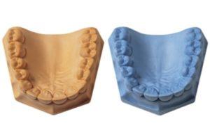 Как делают слепки зубов для брекетов и какие снимки нужны для установки, сколько делают систему после оттиска