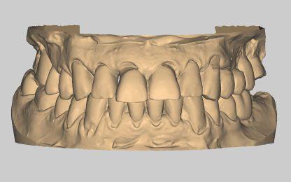 модели челюстей, начальная ситуация