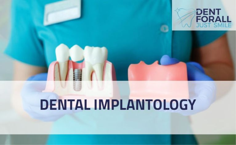 What are dental implantology and what it is made of