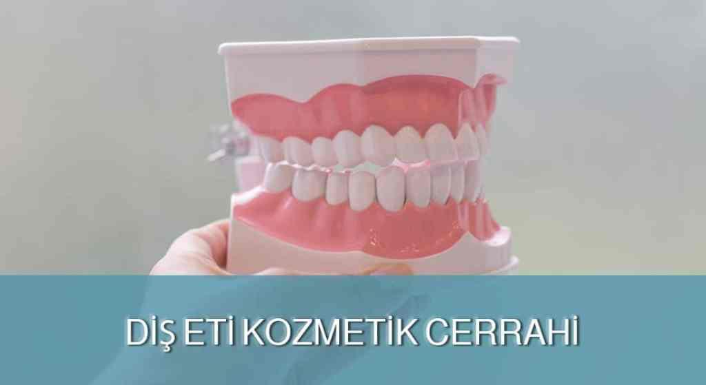 Diş Eti Kozmetik Cerrahi - DENT FOR ALL