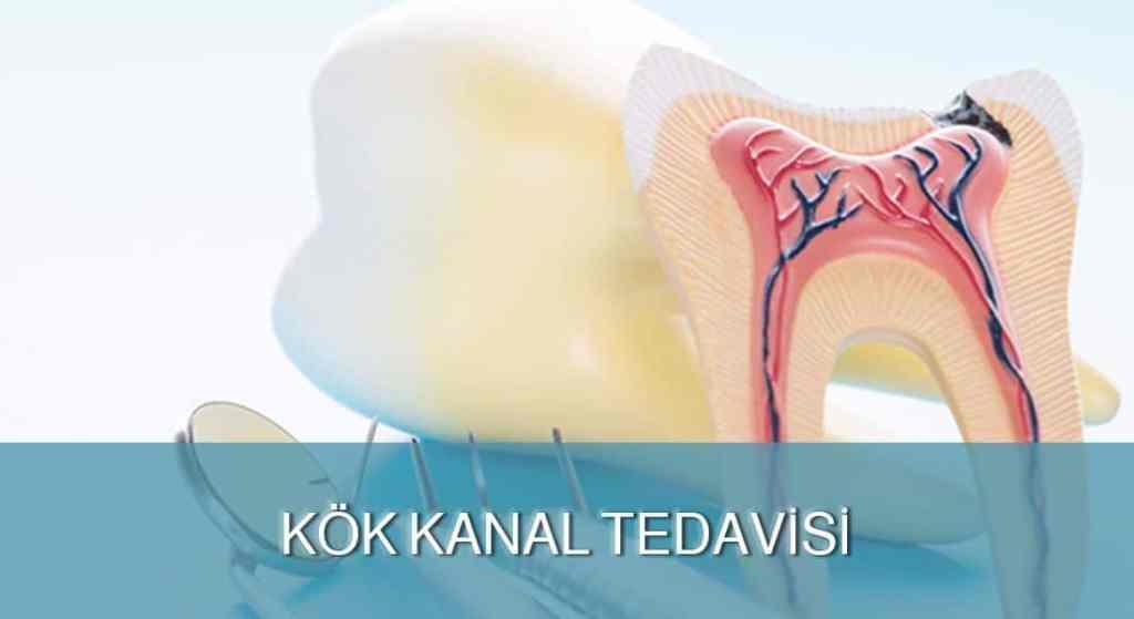 Kök kanal tedavisi - DENT FOR ALL