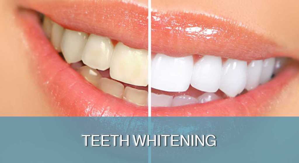 Teeth Whitening - DENT FOR ALL