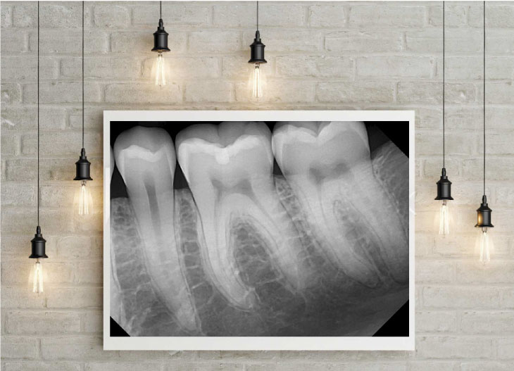 Art of a dental x ray image