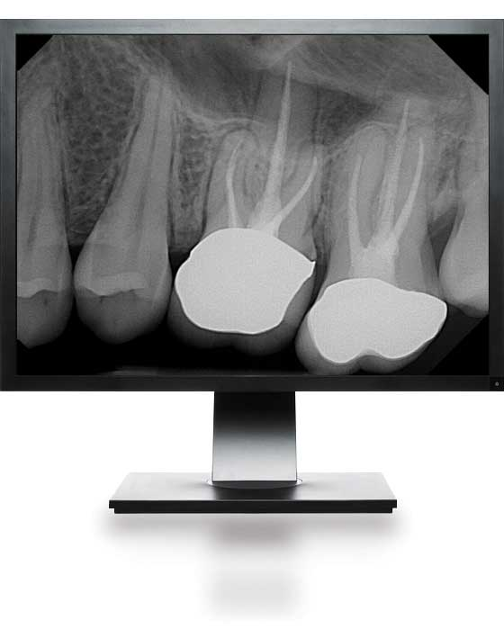 DentiMax Dental Digital X-Ray Technology