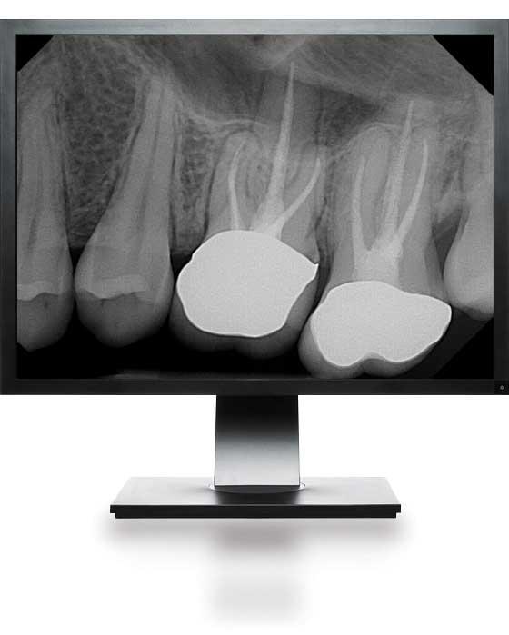 DentiMax Dental Digital X-Ray Technology