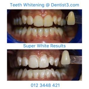 Dental Whitening @ Dentist3 3.2