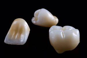 dentist3-zirconia-crown&bridge