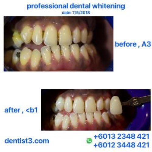 polaoffice-whitening-7-05-2018