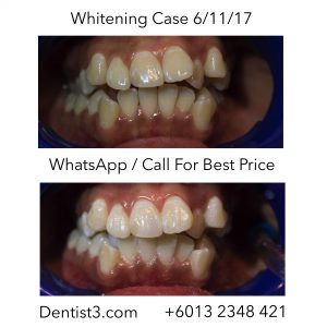 whitening-siti-before-after