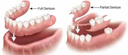full and removable dentures