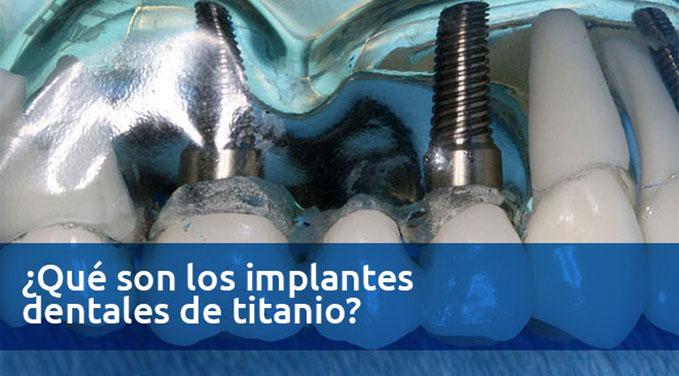 Que-son-los-implantes-dentales-de-titanio