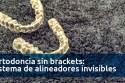 ortodoncia-sin-brackets-sistema-de-alineadores-invisibles-