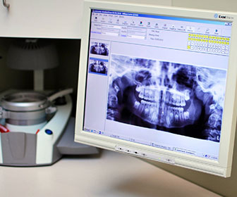 radiografia dental digital