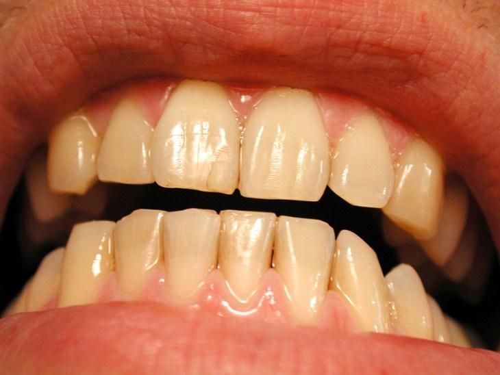 por-que-tengo-los-dientes-amarillos