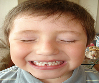 dentadura-infantil
