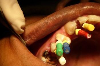 la-endodoncia-en-molares