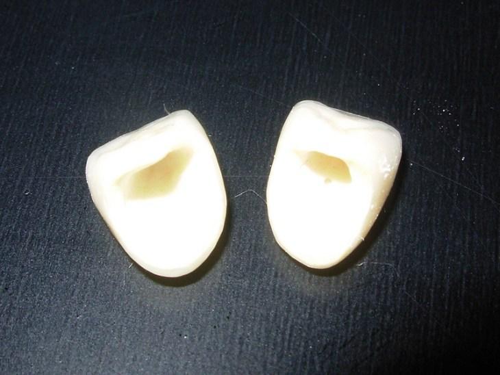que-es-una-corona-dental