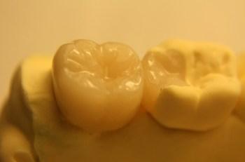 que-son-las-incrustaciones-dentales