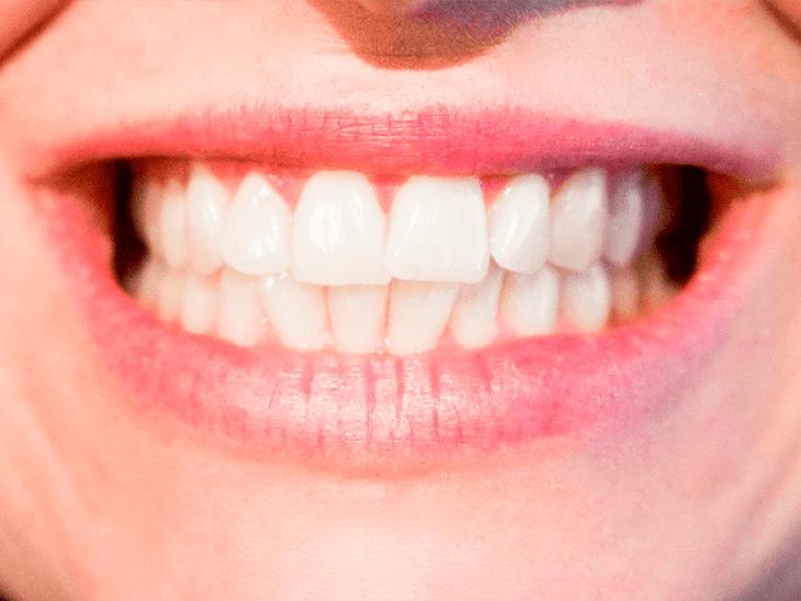 como-blanquear-los-dientes-naturalmente-sin-danar-el-esmalte