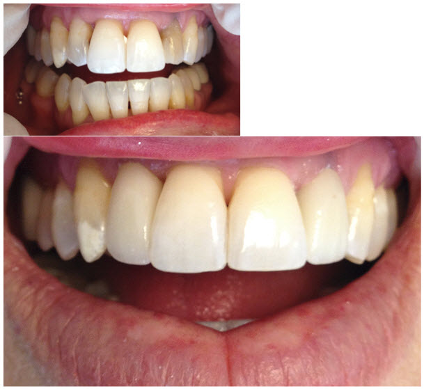 cosmetic_crowns_porcelain_1