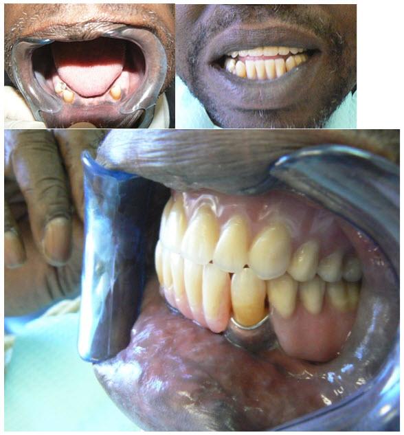 dentures_1