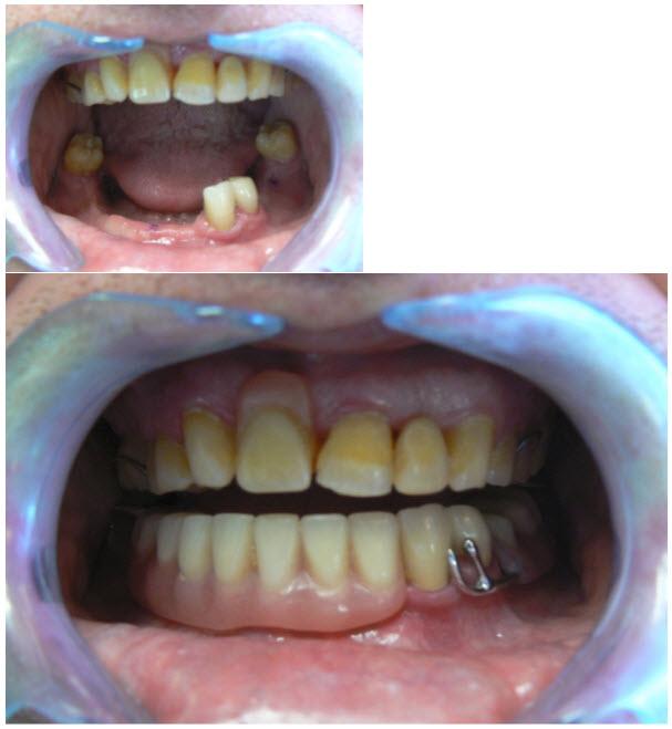 dentures_3